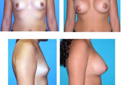 Breast Implants Before and After | Top Miami Plastic Surgeon | W. Scott McDonald, MD