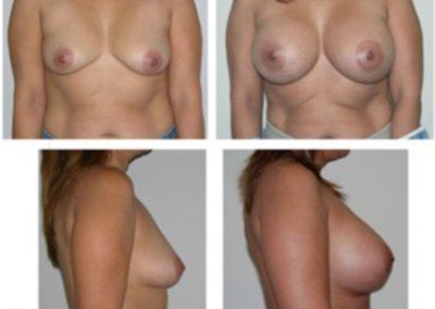 BreastAug.12
