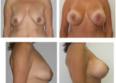 BreastAug.13.lift with implants