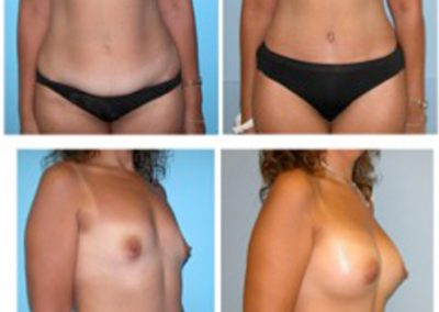Mommy Makeover | Tummy Tuck and Breast Augmentation | Dr. Scott McDonald | Best Miami Plastic Surgeon | Board Certified Plastic Surgeon