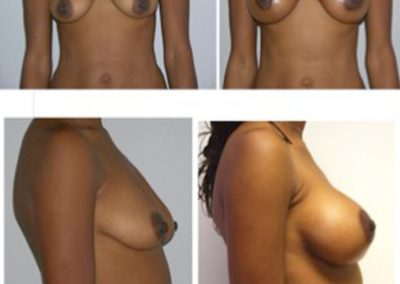 BreastAug.17.Implants with Lift