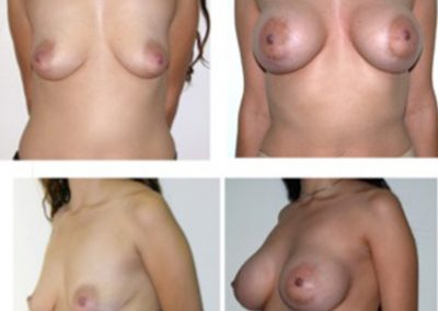 Breast Implants Before and After | Dr. Scott McDonald | Best Miami Plastic Surgeon | Board Certified Plastic Surgeon