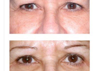 Eyelid Surgery (Blepharoplasty) | W. Scott McDonald | Miami, FL | Plastic Surgeon