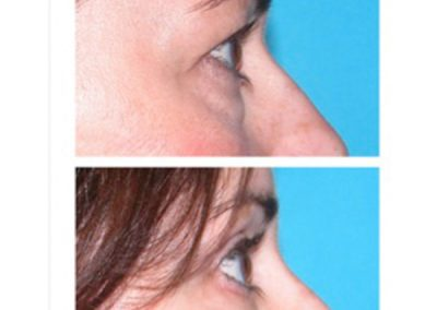 Eyelid Surgery (Blepharoplasty)   W. Scott McDonald   Miami, FL   Plastic Surgeon