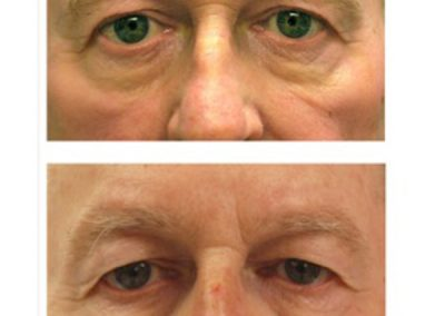 Eyelid Surgery Before and After | Dr. Scott McDonald | Best Miami Plastic Surgeon | Board Certified Plastic Surgeon
