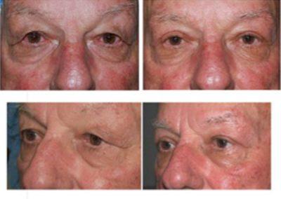 Eyelid Surgery Before and After   W. Scott McDonald   Blepharoplasty