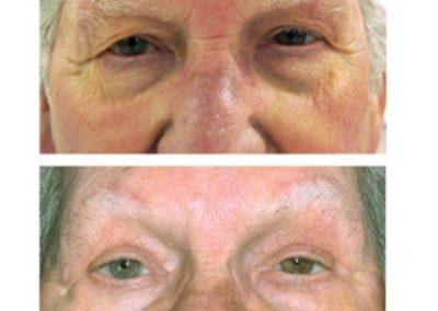 Eyelid Surgery | W. Scott McDonald | Blepharoplasty