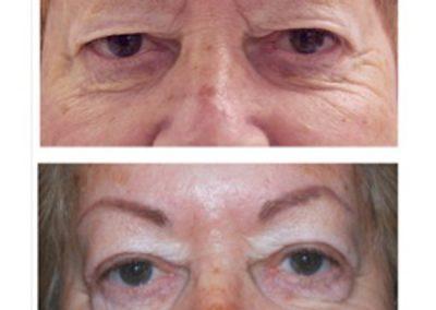 Eyelid Surgery   W. Scott McDonald