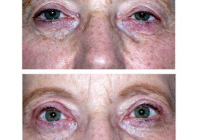 Eyelid Surgery   W. Scott McDonald   Blepharoplasty