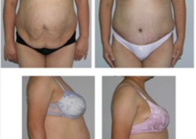 Tummy Tuck Before and After | Abdominoplasty by Dr. Scott McDonald
