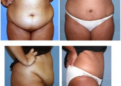 Tummy Tuck Before and After | Dr. Scott McDonald | Best Miami Plastic Surgeon | Board Certified Plastic Surgeon