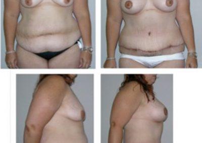 Breast Augmentation and Tummy Tuck | wscottmcdonald | Miami Plasti Surgeon