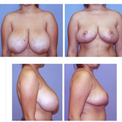 Breast Reduction | Breast Lift | Before and After | W Scott McDonald, MD | Miami Plastic Surgery