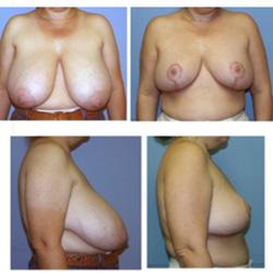 Breast Reduction | W. Scott McDonald, MD | Miami, FL | Jacksonville, FL