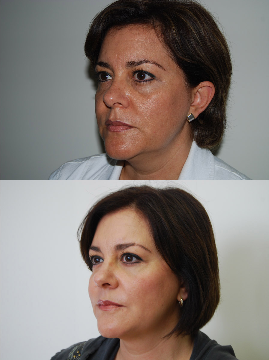 cheek lift | face lift before and after |Best Miami Plastic Surgeon | Dr. Scott McDonald