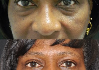 Before and After Eyelid Surgery | Dr. Scott McDonald