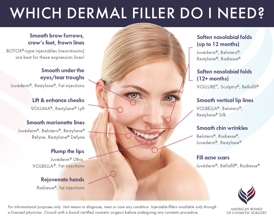 W. Scott McDonald, MD | Fillers and Injectables | Miami Plastic Surgeon